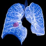 CMS Launches Comment Period for Lung Cancer Screening