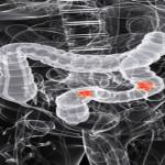 Colon Cancer Screenings Low Among Blacks'