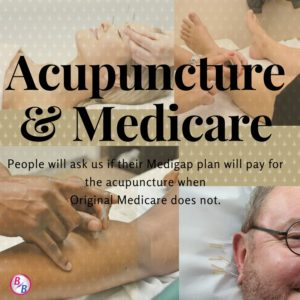 Medicare Cover Acunpuncture